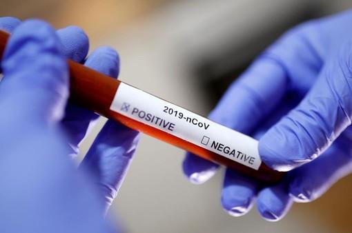 Coronavirus, 12 nuovi casi nel savonese. Lieve aumento in Liguria del tasso di positività (3,30%)