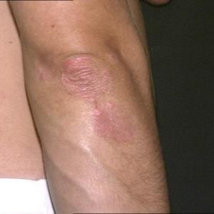 Eczema di malattie della pelle di salute