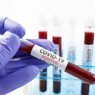 Coronavirus: numeri in lieve rialzo su base regionale: 94 nuovi positivi, ma stabili gli ospedalizzati