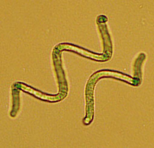 Un'alleata di bellezza, l'alga spirulina