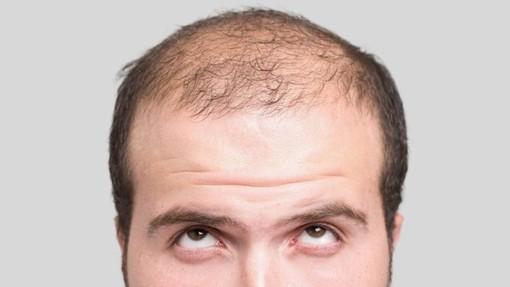 Perdita di capelli, quali sono le cause più comuni?