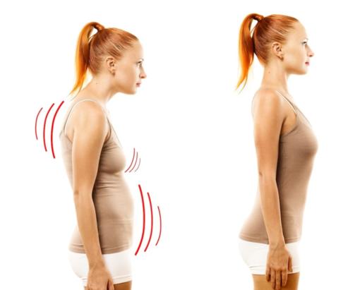 Correttori posturali: che cosa sono e a che cosa servono