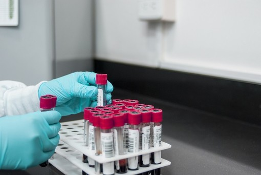 Coronavirus: 321 nuovi positivi in Liguria, 69 i casi nel savonese