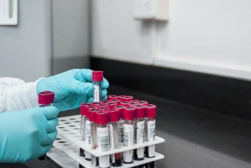 Coronavirus: in Liguria crescono nuovamente i nuovi contagiati e il tasso di positività