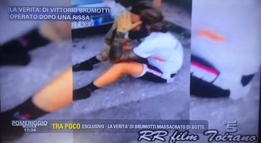 """Vittorio Brumotti aggredito a Toirano: la sua verità a """"Pomeriggio 5"""""""