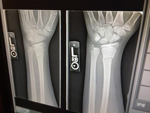 Ospedale Cairo Montenotte: da lunedì riparte la radiologia
