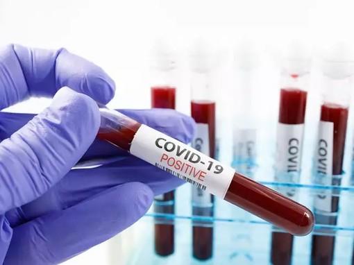 Coronavirus: continuano a diminuire i positivi, ma crescono i nuovi contagi individuati nelle ultime 24 ore (+15)