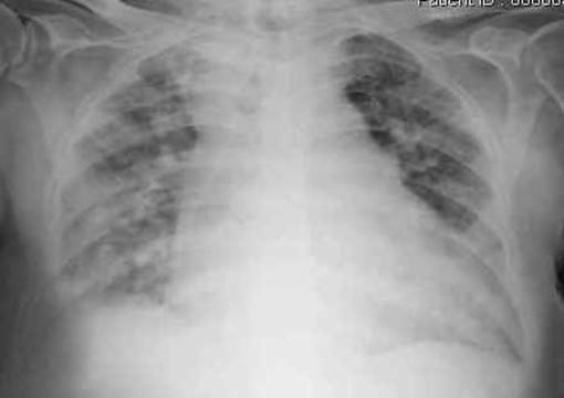 """Inquinamento e mortalità, il Dott. Ireo Bono a Savonanews: """"colpisce il silenzio degli oncologi"""""""